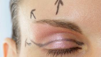 oculoplastia-1