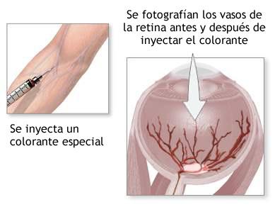 Esquema explicativo angiografía ocular